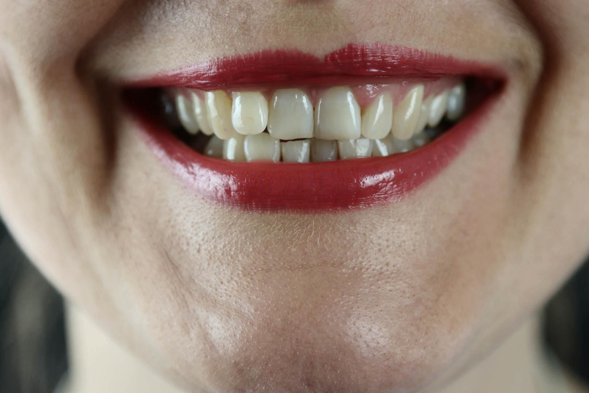 Smile Direct Club vs. Invisalign