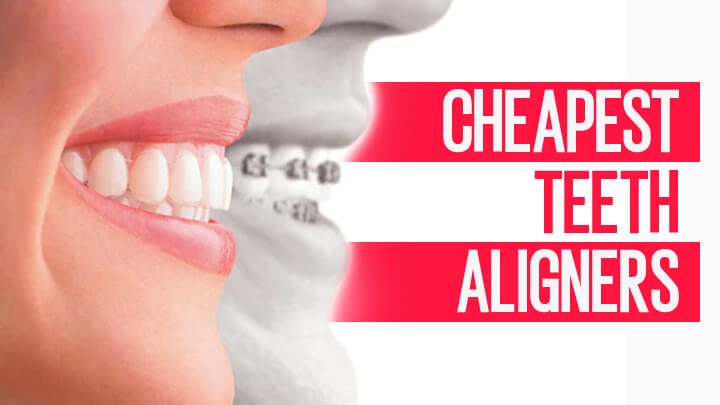 Cheapest Teeth Aligners: The Most Affordable Clear Aligners in 2020