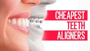 cheapest teeth aligners