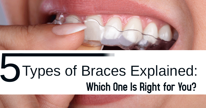 5 Types of Braces Explained: Which One Is Right for You?