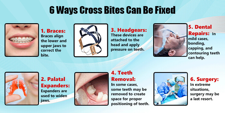6 ways cross bites can be fixed