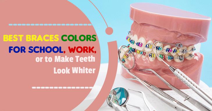 Best Braces Colors for School, Work, or to Make Teeth Look Whiter