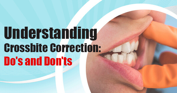 Crossbite Correction: Causes, Treatments and Best Clear Aligners