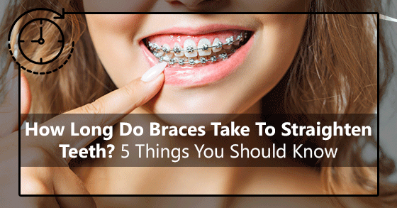 How Long Do Braces Take To Straighten Teeth? 5 Things You Should Know
