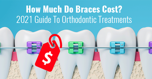 How Much Do Braces Cost? 2021 Guide To Orthodontic Treatments