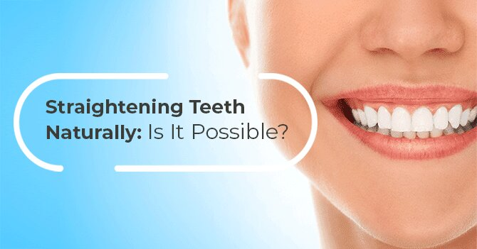Straightening Teeth Naturally: Is It Possible?