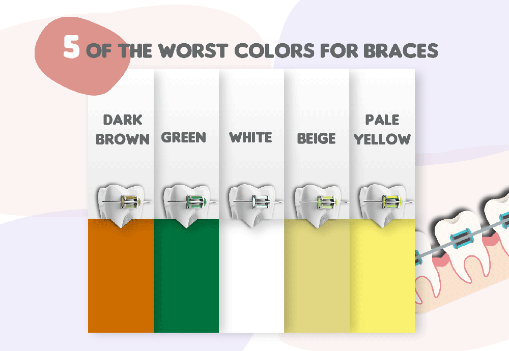 What Are the Worst Colors for Braces?