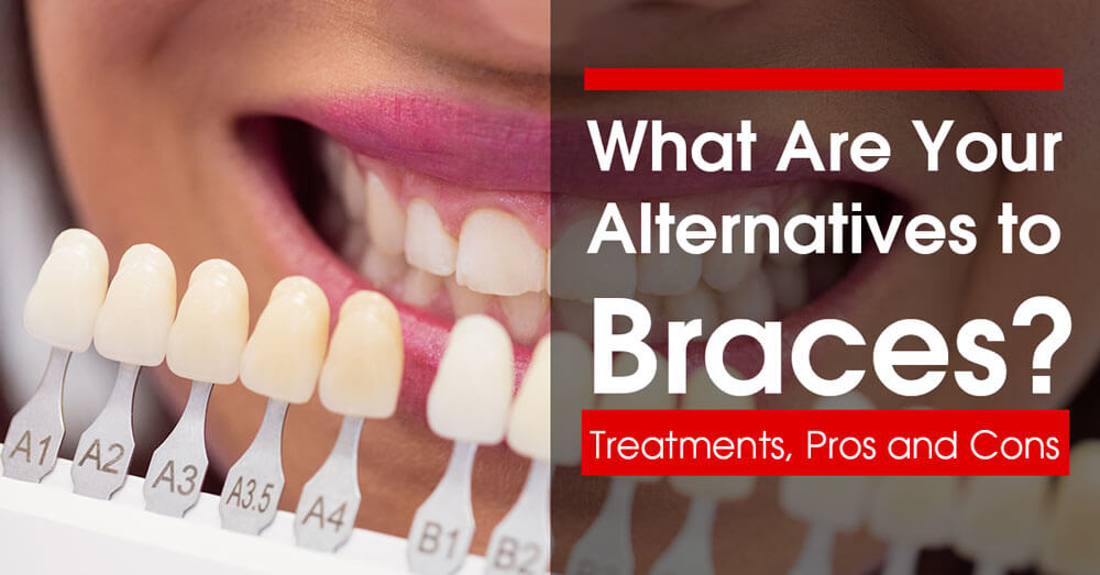 What Are Your Alternatives to Braces? Treatments, Pros and Cons