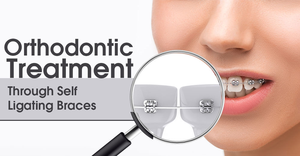 Orthodontic Treatment Through Self Ligating Braces