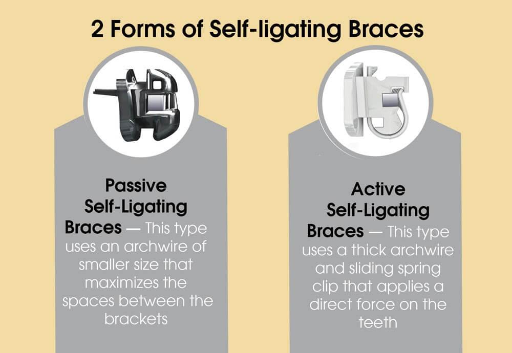 Self Ligating Braces