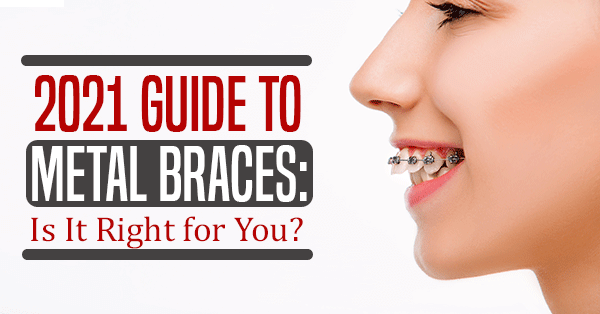 2021 Guide to Metal Braces: Is It Right for You?