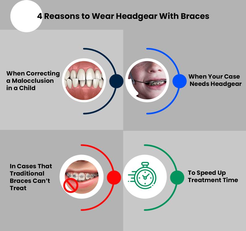 headgear braces