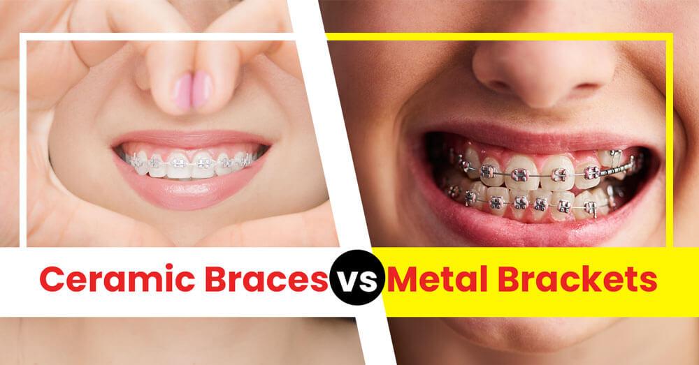 Ceramic Braces vs Metal Brackets