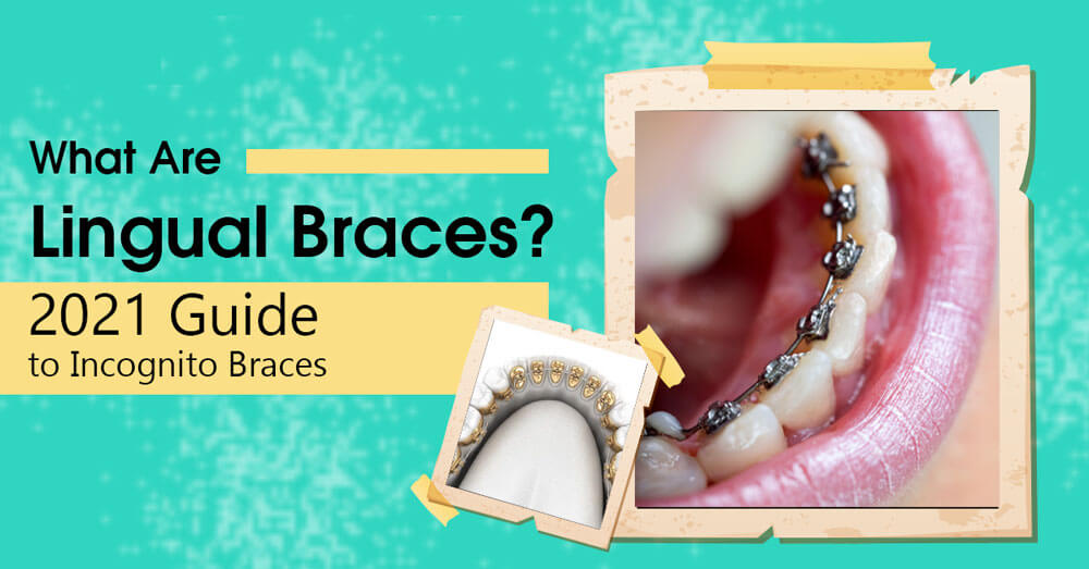 What Are Lingual Braces? 2021 Guide to Incognito Braces