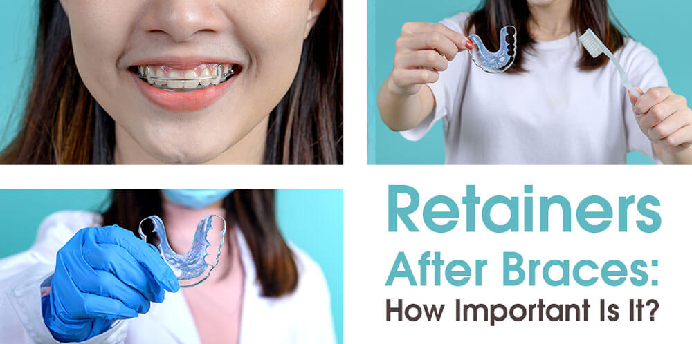 Retainers After Braces: How Important Is It?