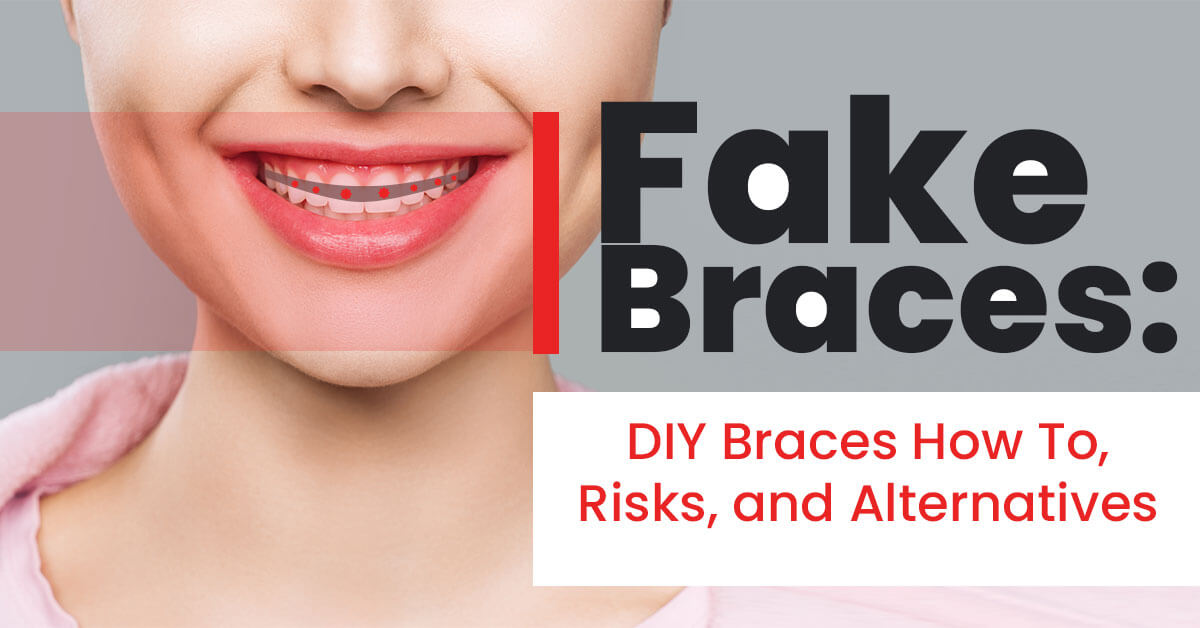 Fake Braces: DIY Braces How To, Risks, and Alternatives